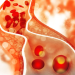 hoher Cholesterinspiegel